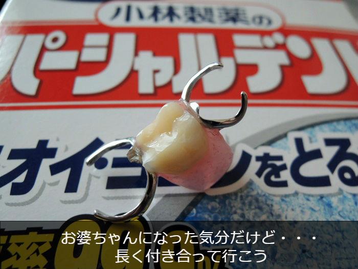 保険適用 部分入れ歯