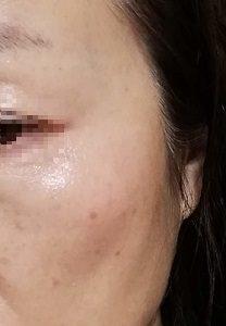 美白化粧品でしみが薄くなった顔の写真