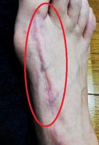 足の親指の腱鞘炎