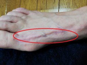 赤くて痛い足の腱